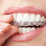 stock-photo-19893186-teeth-with-whitening-tray
