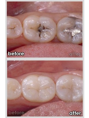 white_fillings_before_after